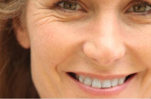 tratamientos arrugas guayaquil